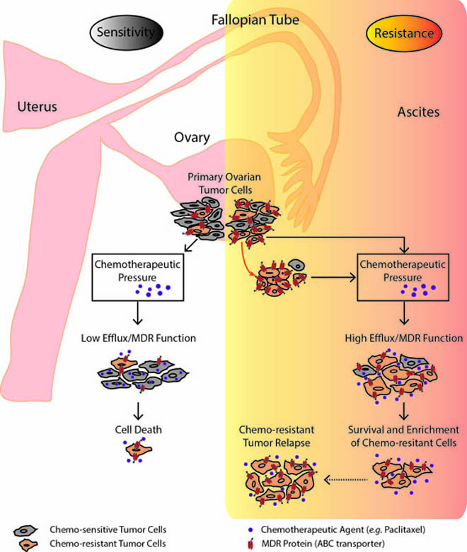 pathophysiology of ovarian cancer santa maria Incidence of epithelial ovarian cancer is relatively low when compared with that of breast, colon, and lung cancer bmj best practice.